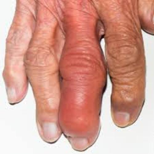 How to prevent arthritis? What should you pay attention to in arthritis diet?