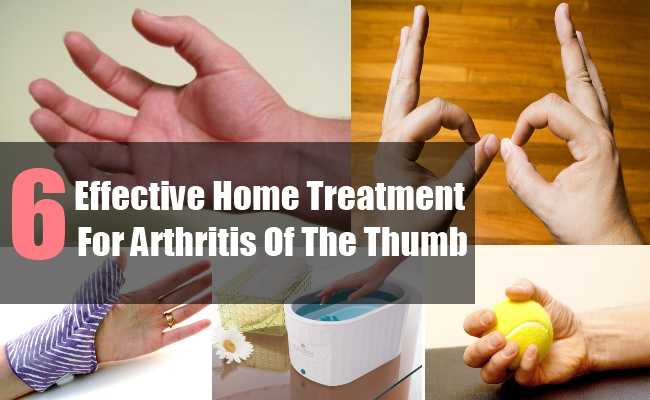 For rheumatoid arthritis or there will be new drugs!