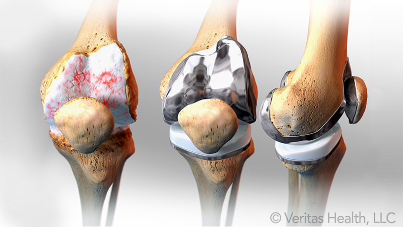 Central Hospital Completes Knee Joint Severe Osteoarthritis with Double Knee Joint Replacement