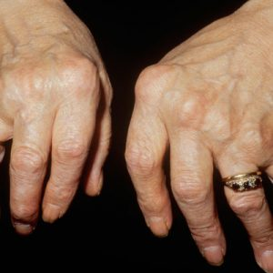 The joint pain of the index finger is related to many factors, not necessarily gout, don't confuse