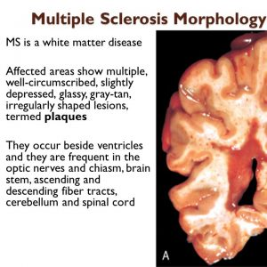 Can multiple sclerosis patients have deafness?